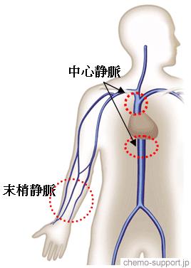 抗癌剤を静脈投与する末梢静脈と刺激性の抗癌剤でも影響が少ない中心静脈