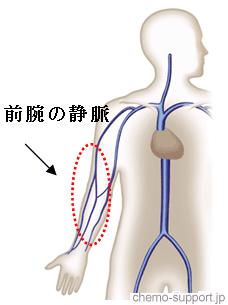 抗癌剤を投与される前腕の静脈