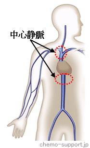 抗癌剤を静脈投与する末梢静脈と刺激性の抗癌剤でも影響が少ない中心静脈(鎖骨下静脈,内頚静脈,大腿静脈)
