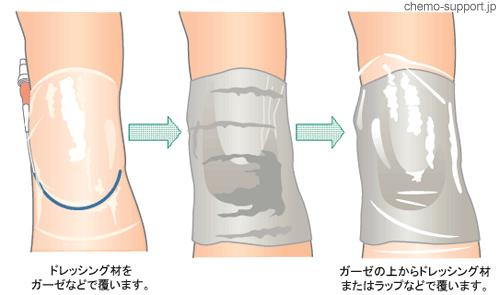 ドレッシング材が濡れないように腕を食品用のラップなどで巻いてピックカテーテル(PICC)を保護すると、シャワー浴が可能