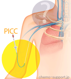 PICC(ピック)|腕から挿入する中心静脈カテーテル