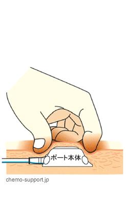 CVポート(リザーバー)|皮膚の上から確認