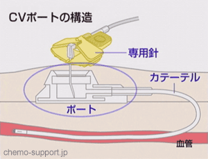 CVポート(リザーバー)の構造