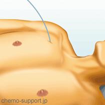 CVポート(リザーバー)手術|カテーテルを血管に挿入