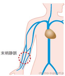 血流量の少ない細い腕の血管である末梢静脈