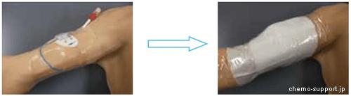 PICCを挿入した状態でカテーテルが濡れないように保護している画像