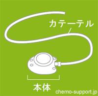 CVポート(リザーバ)本体と血管に挿入されるカテーテル