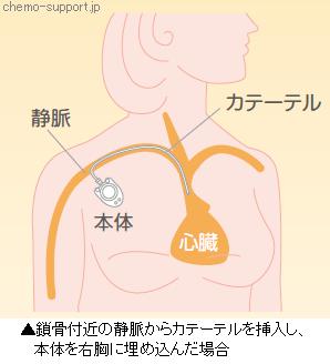 鎖骨付近の静脈からカテーテルを挿入し、本体を右胸に埋め込んだ場合