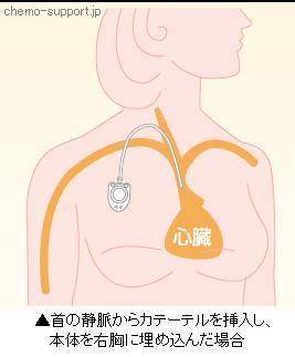 首の静脈からカテーテルを挿入し、本体を右胸に埋め込んだ場合