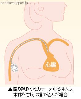 腕の静脈からカテーテルを挿入し、本体を右腕に埋め込んだ場合