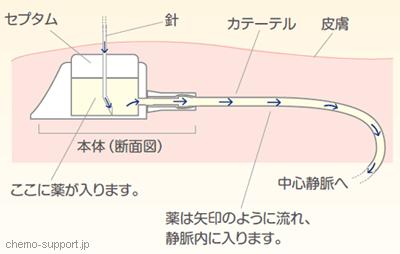 CVポート(リザーバー)に専用針のヒューバー針(ノンコアリングニードル)をセプタムに刺すことにより薬液が投与が可能