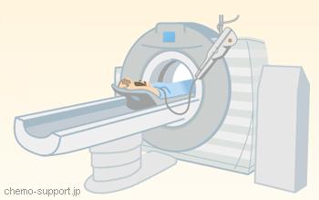 造影CTを行う場合装置のイラスト