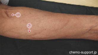血管炎を発生した腕,血管に沿って赤くなっています