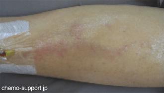 血管炎を発生した腕,血管のあるところの皮膚が硬くなったり,ひきつれたりしています