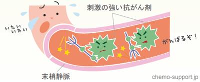 血管刺激性の強いナベルビンなど抗癌剤を細い血管である末梢静脈から点滴した際に生じる血管痛の仕組み